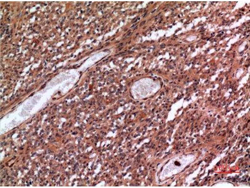 Immunohistochemistry (IHC) image for anti-Membrane Metallo-Endopeptidase (MME) (Internal Region) antibody (ABIN3187862)