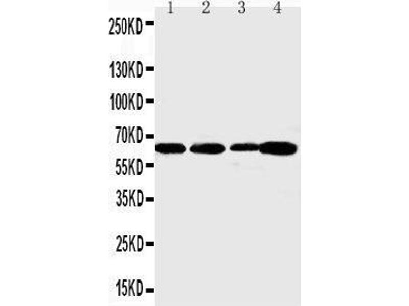 Western Blotting (WB) image for anti-Angiopoietin 1 antibody (ANGPT1) (AA 225-239) (ABIN3044373)