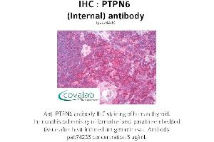 image for anti-PTPN6 antibody (Protein-tyrosine Phosphatase 1C) (Internal Region) (ABIN1738601)