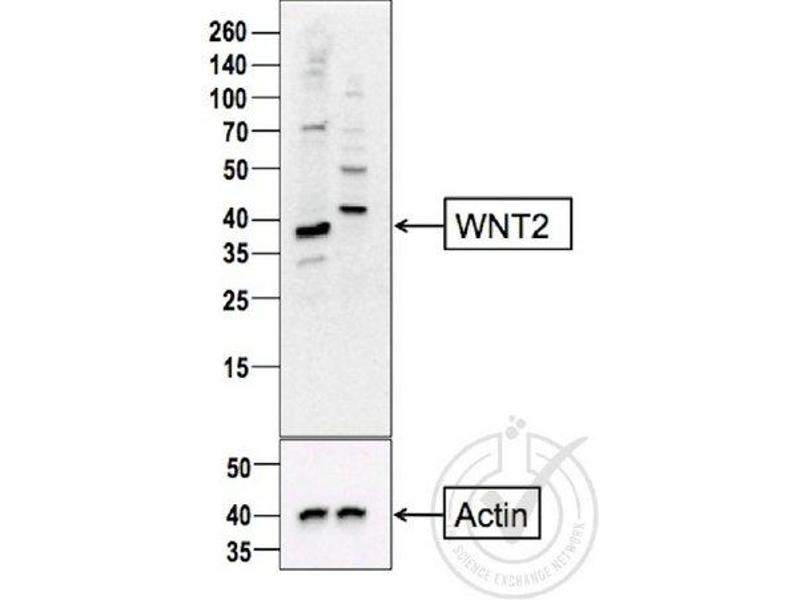 Image no. 5 for anti-Wingless-Type MMTV Integration Site Family Member 2 (WNT2) (AA 240-290) antibody (ABIN762896)
