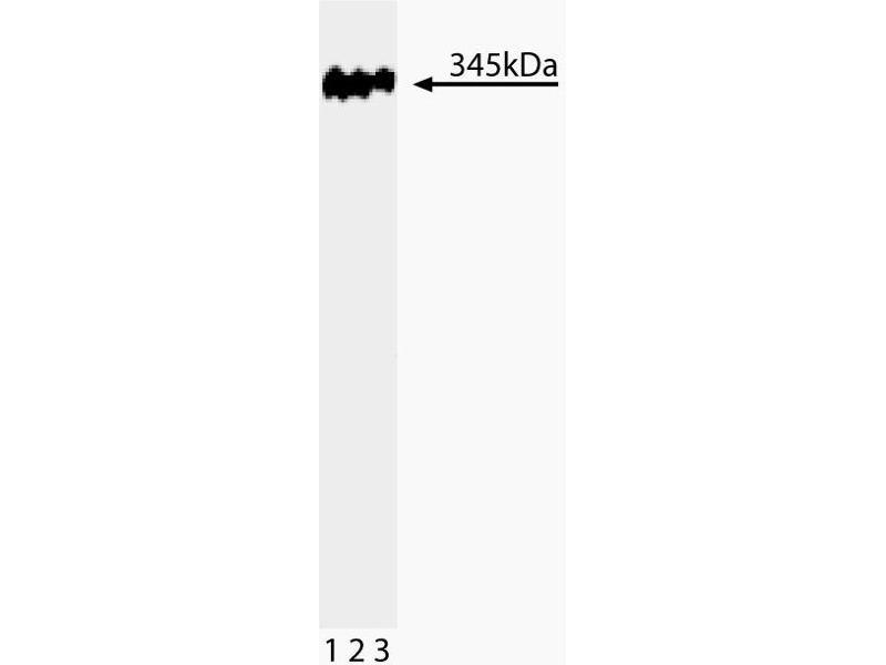Western Blotting (WB) image for anti-TP53BP1 antibody (Tumor Protein P53 Binding Protein 1) (AA 149-259) (ABIN968860)