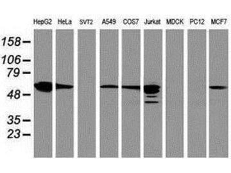 Western Blotting (WB) image for anti-Farnesyl-Diphosphate Farnesyltransferase 1 (FDFT1) antibody (ABIN4311301)