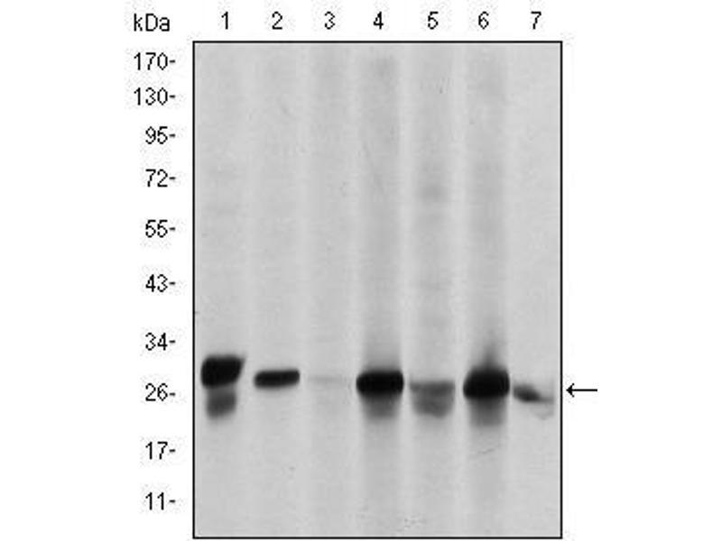 Western Blotting (WB) image for anti-Heat Shock 27kDa Protein 1 (HSPB1) antibody (ABIN4880328)