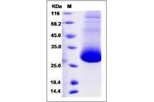 Image no. 1 for CD90 (THY1) (AA 1-129) protein (His tag) (ABIN2009981)