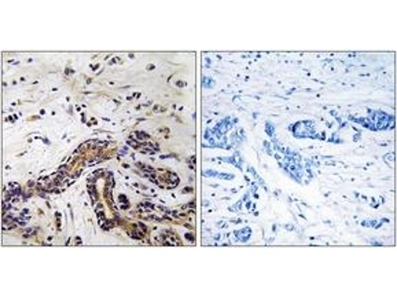 Immunohistochemistry (IHC) image for anti-Cytoplasmic Linker Associated Protein 1 (CLASP1) (AA 1171-1220) antibody (ABIN1534785)