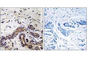 Immunohistochemistry (IHC) image for anti-Cytoplasmic Linker Associated Protein 1 (CLASP1) antibody (ABIN1534785)