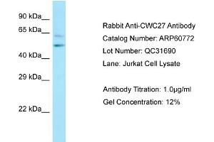 Image no. 1 for anti-CWC27 Spliceosome-Associated Protein Homolog (S. Cerevisiae) (Cwc27) (C-Term) antibody (ABIN2788570)
