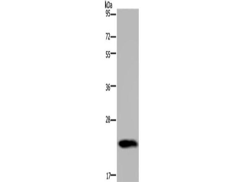 Western Blotting (WB) image for anti-Growth Hormone 2 (GH2) antibody (ABIN2430173)