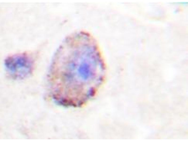 Immunohistochemistry (Paraffin-embedded Sections) (IHC (p)) image for anti-PLCB3 Antikörper (phospholipase C, beta 3 (Phosphatidylinositol-Specific)) (ABIN498179)