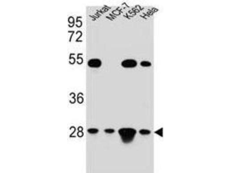 Western Blotting (WB) image for anti-Transcription Factor A, Mitochondrial (TFAM) antibody (ABIN2995591)