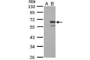 Image no. 2 for anti-Coagulation Factor X (F10) (Center) antibody (ABIN2856706)