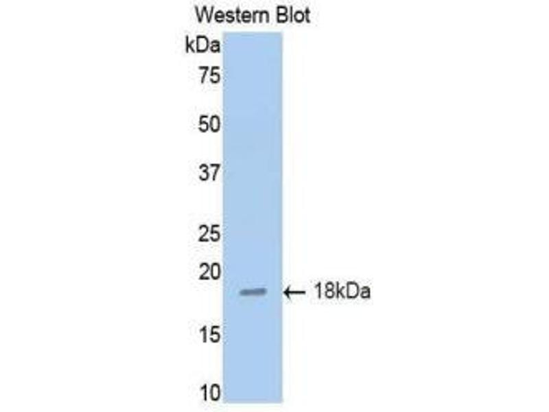 Western Blotting (WB) image for anti-Tumor Necrosis Factor Receptor Superfamily, Member 10b (TNFRSF10B) (AA 54-180) antibody (ABIN1860800)