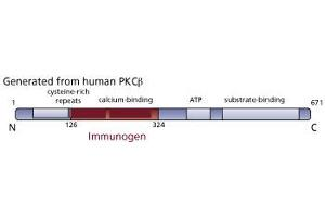 image for anti-PKC beta antibody (Protein Kinase C, beta) (AA 126-324) (ABIN967769)