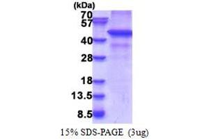 Image no. 1 for Ring Finger Protein 34 (RNF34) (AA 1-373) protein (His tag) (ABIN5853359)