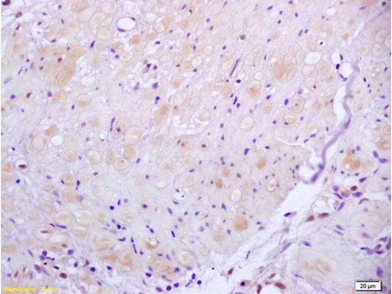 Immunohistochemistry (IHC) image for anti-rho-Associated, Coiled-Coil Containing Protein Kinase 2 (ROCK2) antibody (ABIN673359)