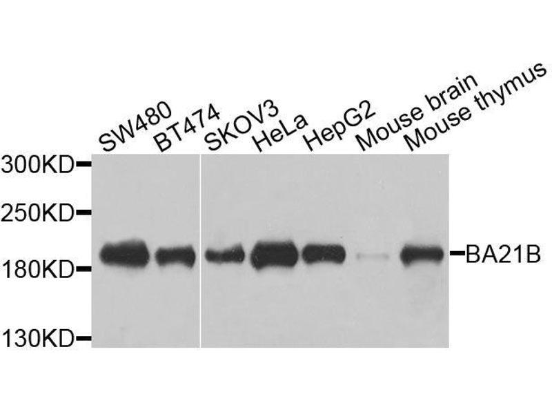 Western Blotting (WB) image for anti-Bromodomain Adjacent To Zinc Finger Domain, 1B (BAZ1B) antibody (ABIN3068765)