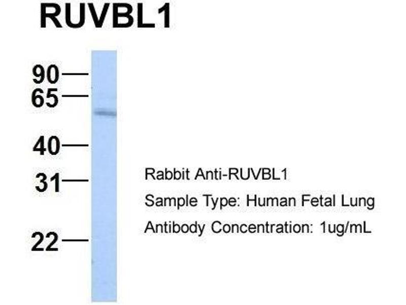Western Blotting (WB) image for anti-RuvB-Like 1 (E. Coli) (RUVBL1) (N-Term) antibody (ABIN309654)