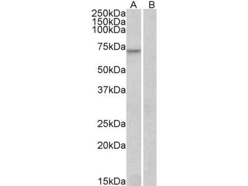 Image no. 3 for anti-Forkhead Box O3 (FOXO3) (C-Term) antibody (ABIN185248)