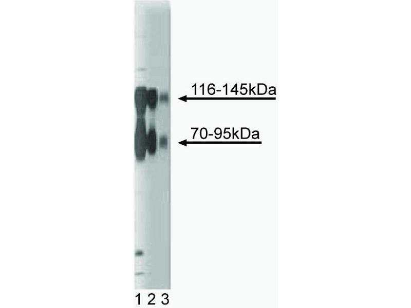 Western Blotting (WB) image for anti-Neurotrophic Tyrosine Kinase, Receptor, Type 2 (NTRK2) (AA 156-322) antibody (ABIN967746)