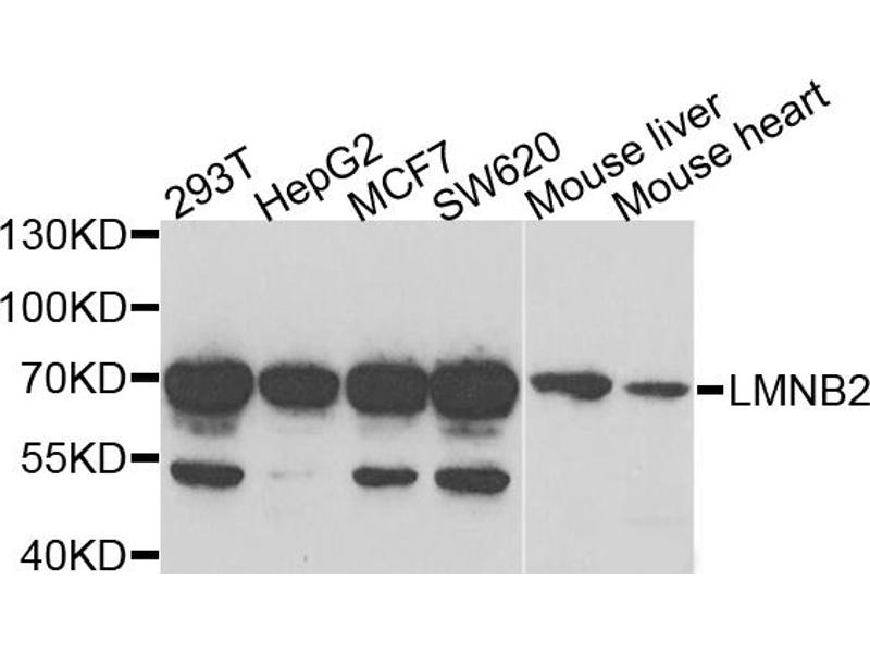 Western Blotting (WB) image for anti-Lamin B2 (LMNB2) antibody (ABIN2969351)