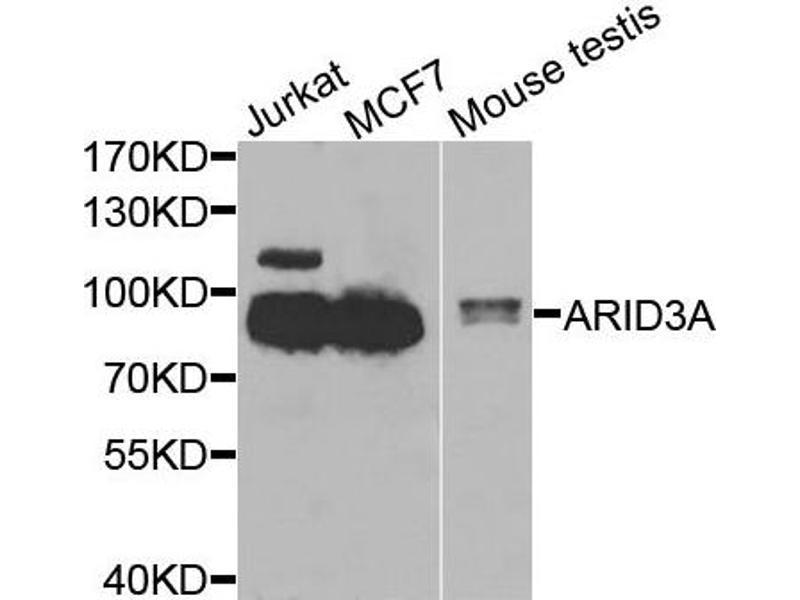 Western Blotting (WB) image for anti-AT Rich Interactive Domain 3A (BRIGHT-Like) (ARID3A) antibody (ABIN2736301)