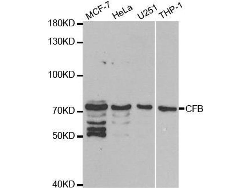 Western Blotting (WB) image for anti-Complement Factor B (CFB) antibody (ABIN3015550)
