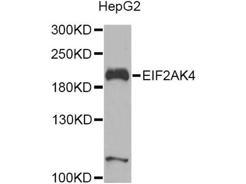 Image no. 4 for anti-Eukaryotic Translation Initiation Factor 2 alpha Kinase 4 (EIF2AK4) antibody (ABIN6567595)