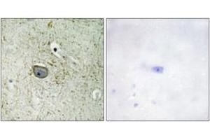 Immunohistochemistry (IHC) image for anti-Platelet-Derived Growth Factor Receptor, alpha Polypeptide (PDGFRA) (AA 731-780) antibody (ABIN1532638)