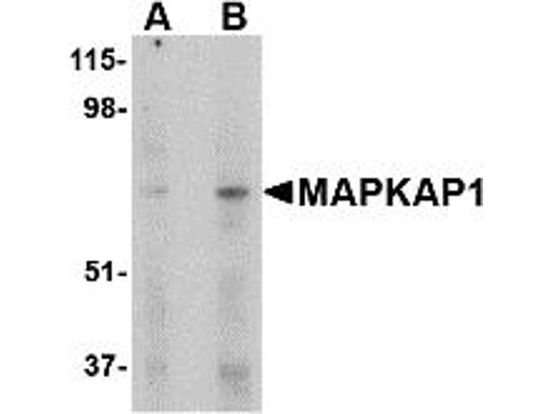 Western Blotting (WB) image for anti-MAPKAP1 antibody (Mitogen-Activated Protein Kinase Associated Protein 1) (Middle Region) (ABIN1030995)