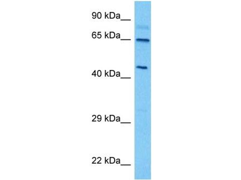 Image no. 3 for anti-Thyroid Hormone Receptor, alpha (THRA) (Middle Region) antibody (ABIN2776019)