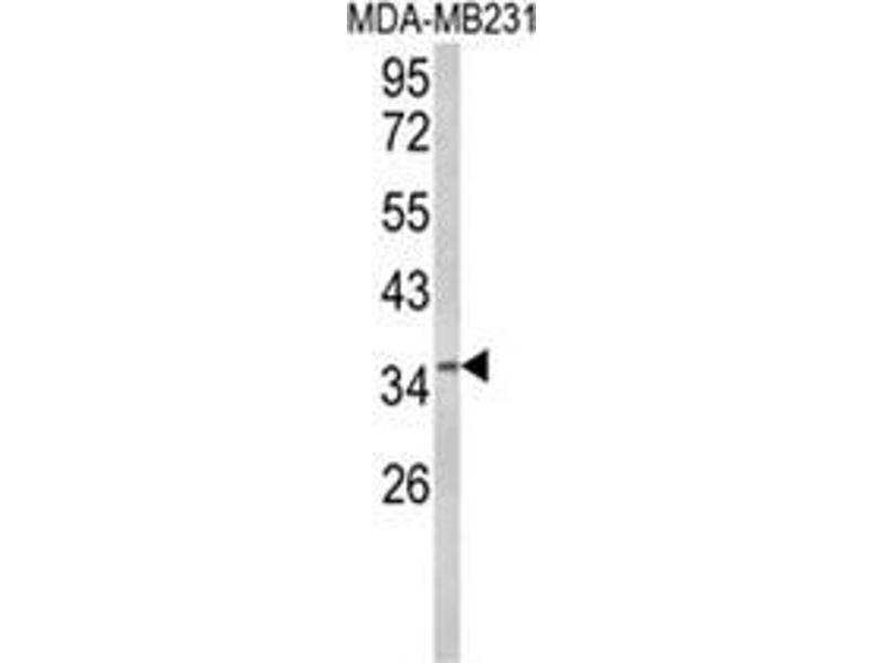 Western Blotting (WB) image for anti-BRISC and BRCA1 A Complex Member 1 (BABAM1) (Middle Region) antibody (ABIN453692)