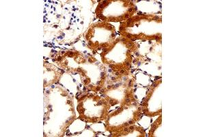 Image no. 2 for anti-F-Box and Leucine-Rich Repeat Protein 17 (FBXL17) (AA 262-297), (C-Term), (Isoform 2) antibody (ABIN5535621)