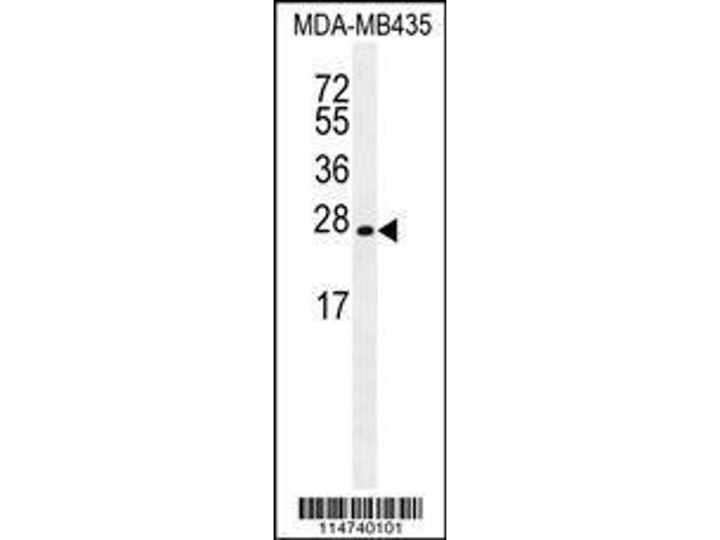 Western Blotting (WB) image for anti-Lin-28 Homolog A (C. Elegans) (LIN28A) antibody (ABIN655496)