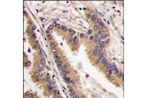 Immunohistochemistry (Paraffin-embedded Sections) (IHC (p)) image for anti-MAPK4 antibody (Mitogen-Activated Protein Kinase 4) (C-Term) (ABIN359633)