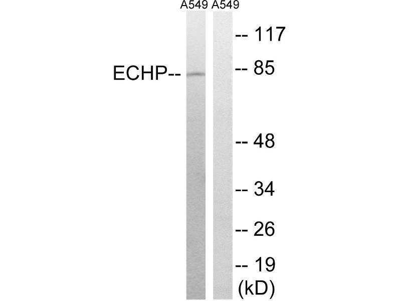 Image no. 2 for anti-Enoyl-CoA, Hydratase/3-Hydroxyacyl CoA Dehydrogenase (EHHADH) (Internal Region) antibody (ABIN1576221)