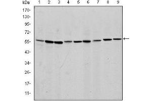 Western Blotting (WB) image for anti-AIFM1 antibody (Apoptosis-Inducing Factor, Mitochondrion-Associated, 1) (ABIN1105269)