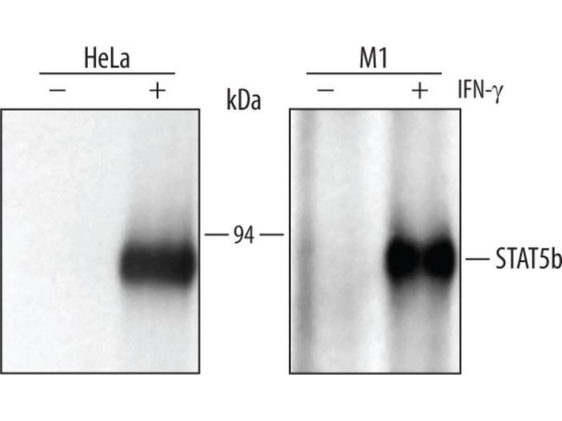 Immunoprecipitation (IP) image for anti-Signal Transducer and Activator of Transcription 5B (STAT5B) (AA 777-787) antibody (ABIN4900487)