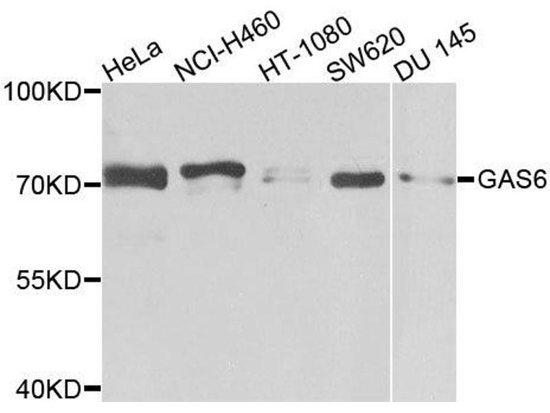 Western Blotting (WB) image for anti-Growth Arrest-Specific 6 (GAS6) antibody (ABIN4903738)