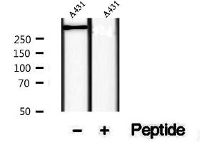 Image no. 2 for anti-Ryanodine Receptor 2 (Cardiac) (RYR2) (pSer2814) antibody (ABIN6256236)