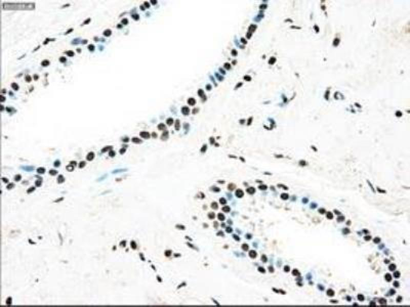 Immunohistochemistry (Paraffin-embedded Sections) (IHC (p)) image for anti-TYRO3 Protein Tyrosine Kinase (TYRO3) antibody (ABIN4306338)