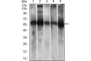 Image no. 3 for anti-Aldehyde Dehydrogenase 2 Family (Mitochondrial) (ALDH2) (AA 317-517) antibody (ABIN1724796)