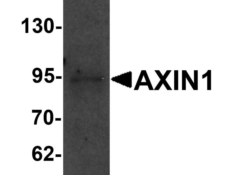 Western Blotting (WB) image for anti-AXIN1 antibody (Axin 1) (C-Term) (ABIN1030273)