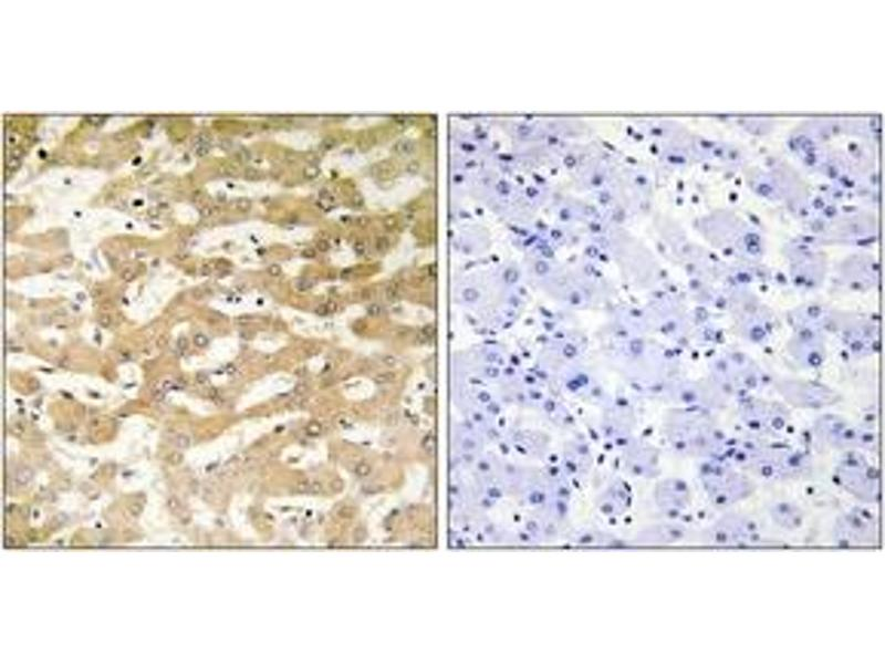 Immunohistochemistry (IHC) image for anti-FADD antibody (Fas (TNFRSF6)-Associated Via Death Domain) (ABIN1534444)