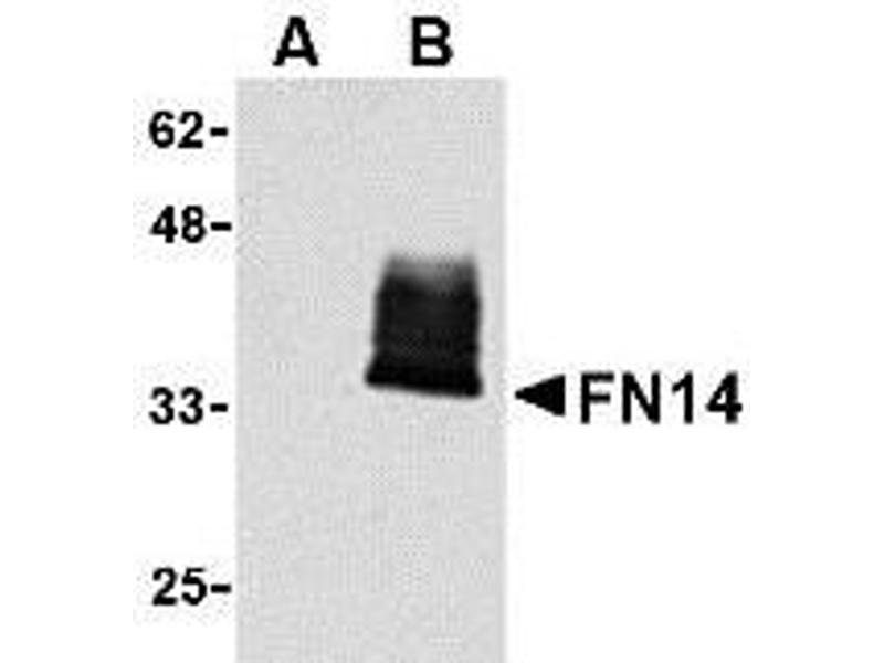 Western Blotting (WB) image for anti-TNFRSF12A antibody (Tumor Necrosis Factor Receptor Superfamily, Member 12A) (ABIN920905)