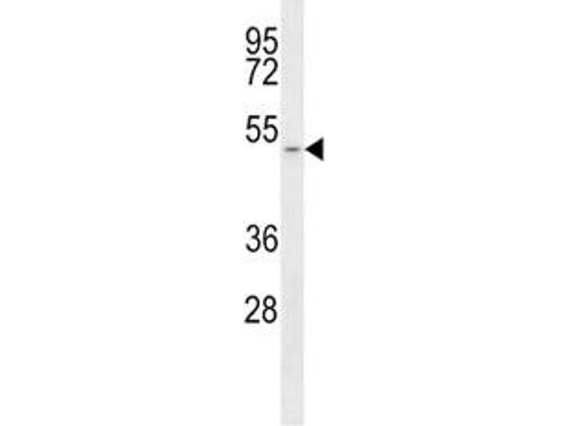 Image no. 1 for anti-Solute Carrier Family 16, Member 1 (Monocarboxylic Acid Transporter 1) (SLC16A1) (AA 430-460) antibody (ABIN3028819)