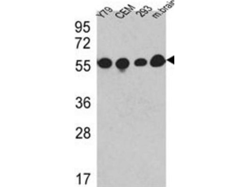 Western Blotting (WB) image for anti-Tubulin, beta (TUBB) antibody (ABIN2995285)
