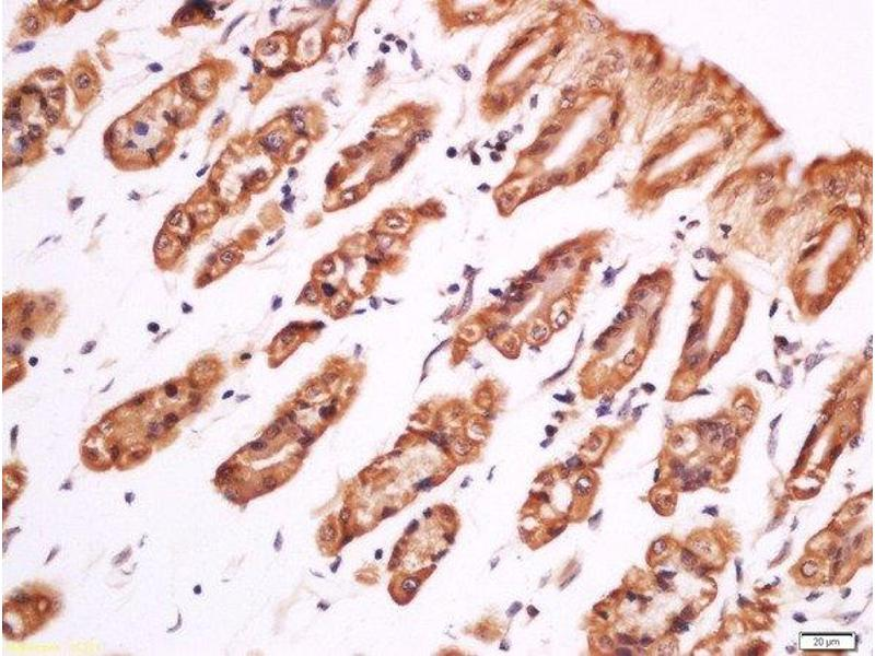 Immunohistochemistry (Paraffin-embedded Sections) (IHC (p)) image for anti-phospholipase C, gamma 1 (PLCG1) (AA 760-810), (pTyr783) antibody (ABIN744908)