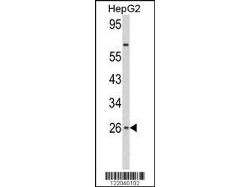 Western Blotting (WB) image for anti-IFNB1 antibody (Interferon, beta 1, Fibroblast) (AA 39-66) (ABIN652479)