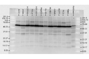 Image no. 1 for anti-HSP70 antibody (Heat Shock Protein 70) (ABIN361820)