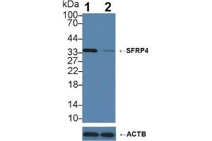 Image no. 3 for anti-Secreted Frizzled-Related Protein 4 (SFRP4) (AA 22-346) antibody (ABIN3201774)